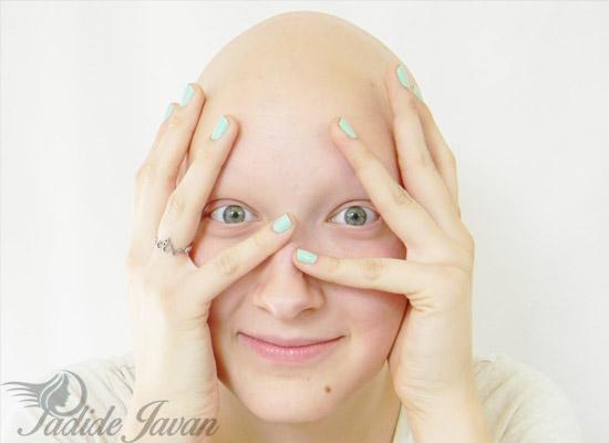 ترمیم مو شیمی درمانی