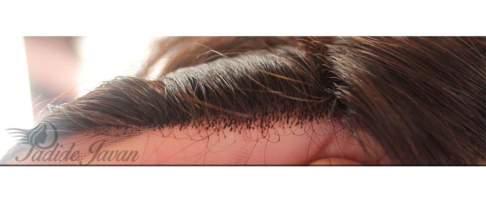 پروتز موی نامرقوب
